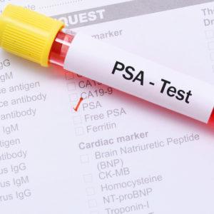 PSA test